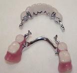 Частичные или полные съемные протезы зубов из пластмассы, ацетали